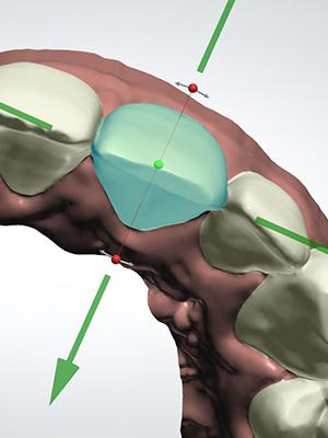 analisi 3d denti dair allineatore invisibile