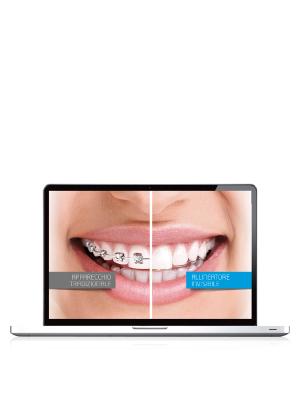 video per marketing dair allineatore invisibile