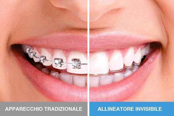 prima e dopo, apparecchio tradizionale e allineatore invisibile per denti